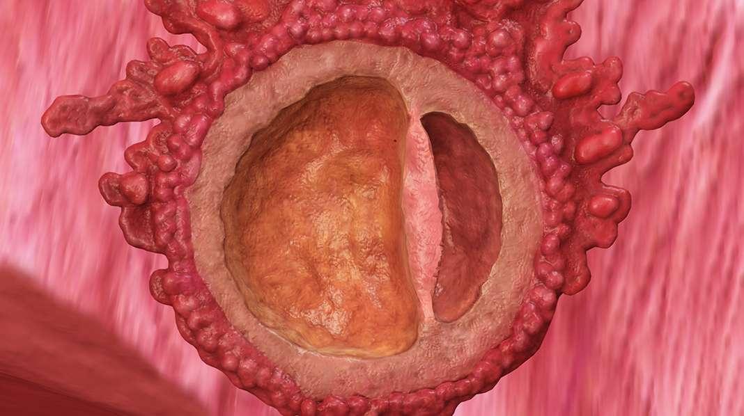 4. raskausviikko – alkio on juuri kiinnittymäisillään kohdun seinämään.