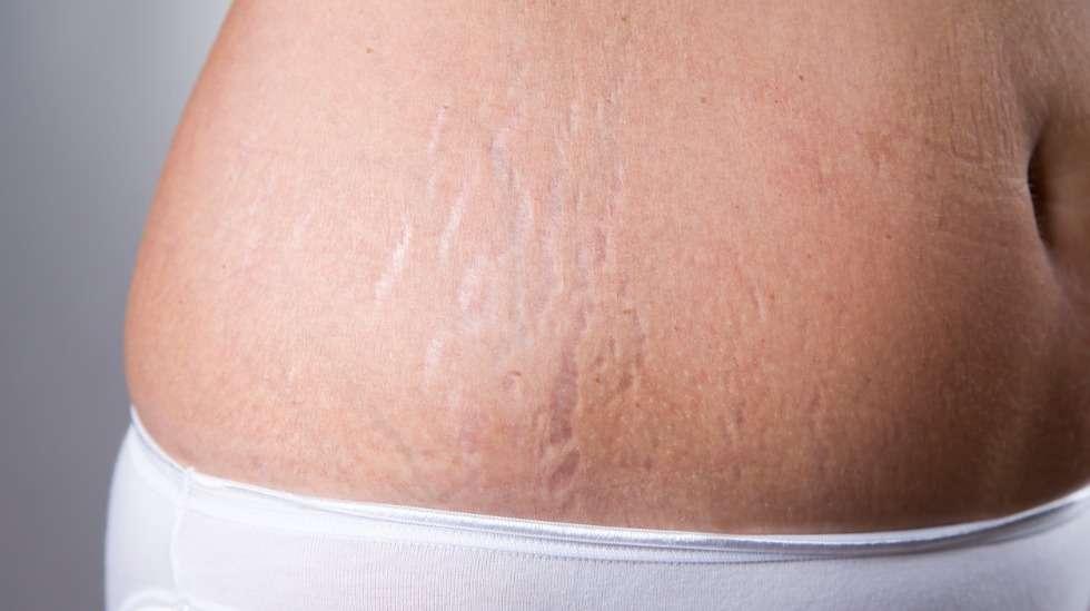 Lähes kaikki odottajat saavat raskausarpia, ja niiden määrä ja erottuvuus on ennen kaikkea kiinni kudostyypistä. Kuva: iStock.