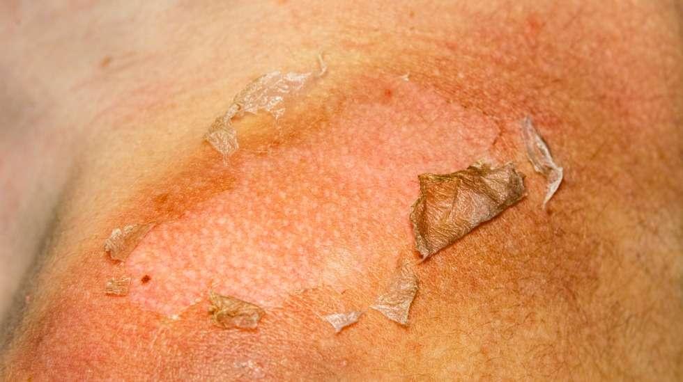 Pahoin palanut iho hilseilee, kesii, tai jopa kuoriutuu liuskoina pois pari päivää palamisen jälkeen. Kuva: iStock