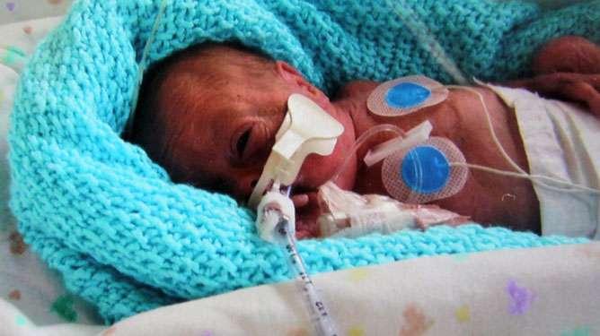 Jacob syntyi 23. raskausviikolla