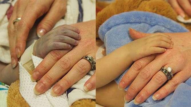 Lincolnin pieni käsi ennen ja jälkeen leikkauksen. Kuvien välillä on alle 24 tuntia. Kuva: Danielle Wakefield - www.akbirthphotographer.com