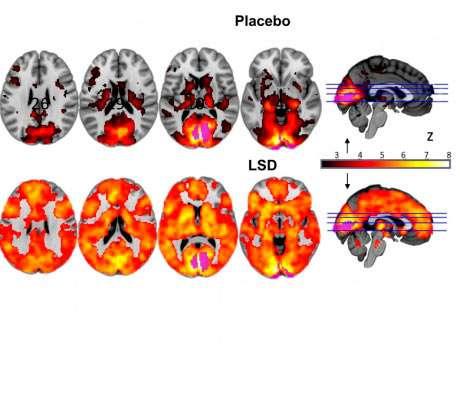 Koetuloksesta näkee, kuinka koehenkilöiden aivoissa visuaaliset näyt prosessoituivat. Placebon vaikutuksen alaisena aivot eivät olleet yhtä aktiivisia.