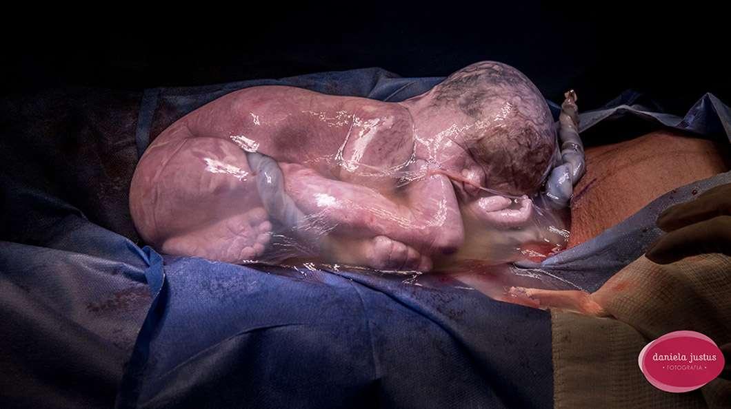 """Erittäin harvinainen ilmiö: Tämä vauva syntyi sikiöpussissa. Monissa maissa näin syntyvän lapsen uskotaan olevan erityisen onnekas. Kuvan on ottanut brasilialainen Daniela Justus, ja se voitti ensimmäisen palkinnon sarjassa """"Syntymä""""."""