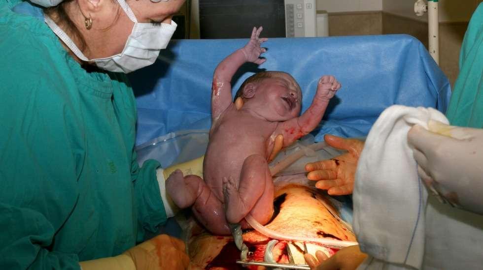 Kun leikkaushaava on luotu, lapsen auttaminen ulos kestää yleensä vain muutaman minuutin. Kuva: iStock