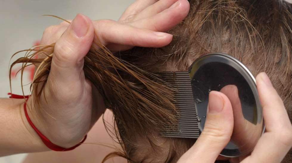 Täiden häätäminen vaatii säännöllistä hiusten kampaamista täikammalla. Kuva: iStock
