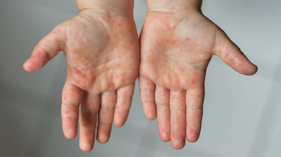 Enterorokko ilmenee usein näppylöinä kämmenissä ja jalkapohjissa. Kuva: iStock