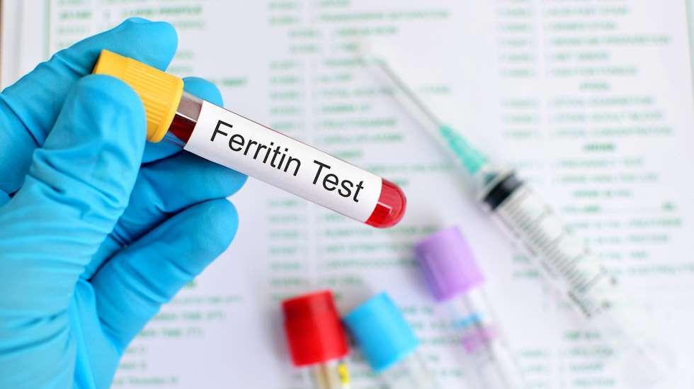Ferritiiniarvonsa voi tarkistuttaa nopealla verikokeella. Raskautta suunnittelevan ferritiinipitoisuuden olisi hyvä olla 50-70 mikrogrammaa per verilitra. Kuva: iStock